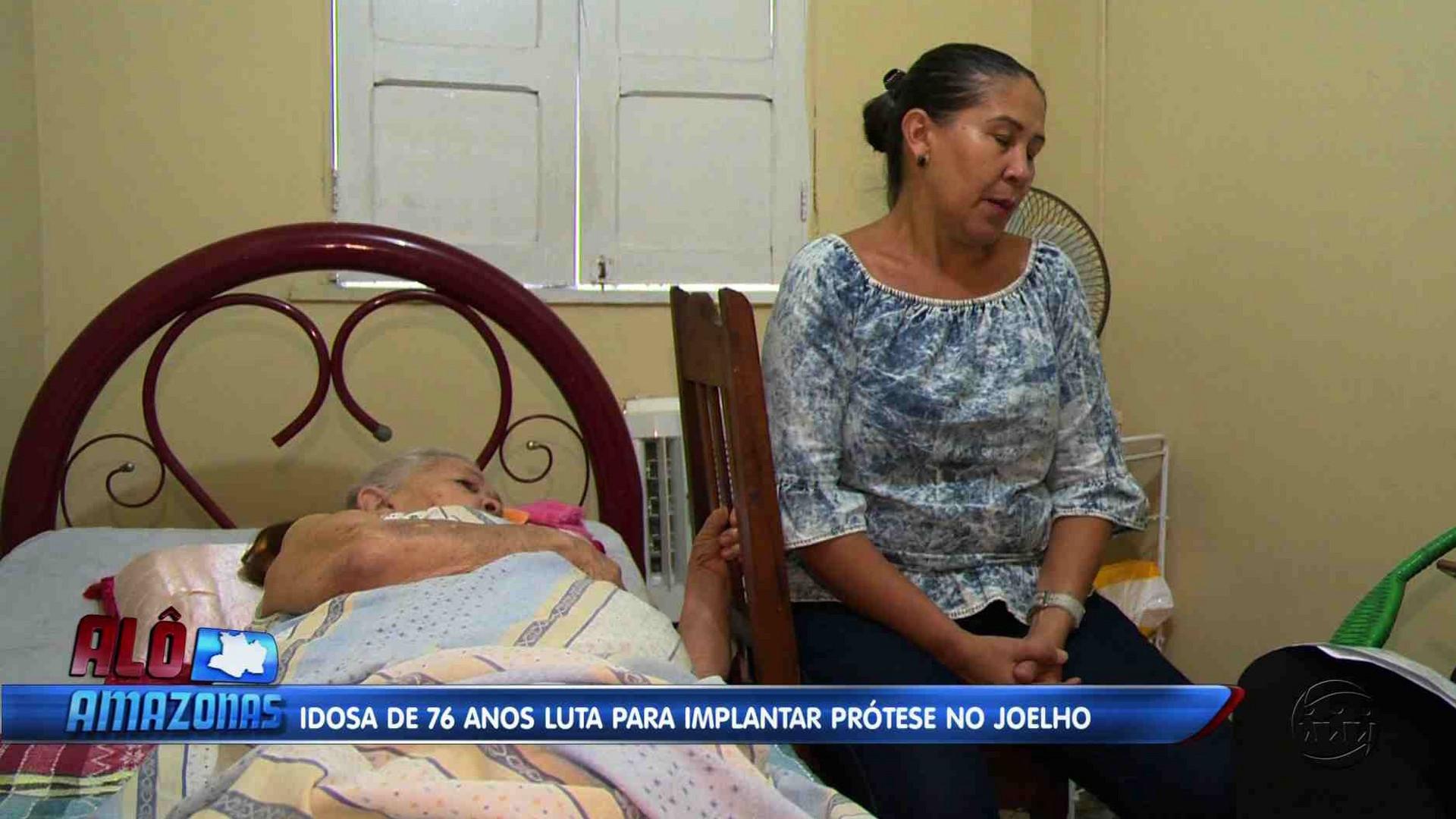IDOSA DE 76 ANOS LUTA PARA  IMPLANTAR PRÓTESE NO JOELHO - Alô Amazonas 12/12/17